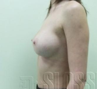 Пластическая операция на грудь сургут