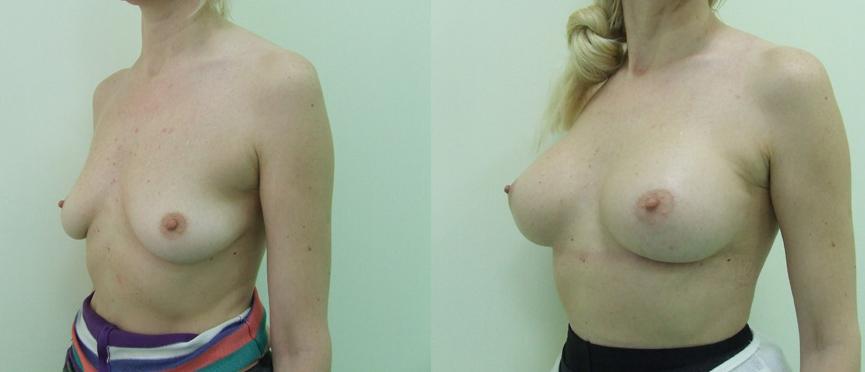 Подтяжка груди на круглых имплантах