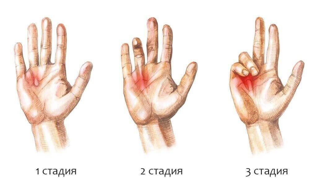 Лечение Контрактуры Дюпюитрена в Киеве