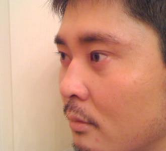 Плохой запах в носу после ринопластики
