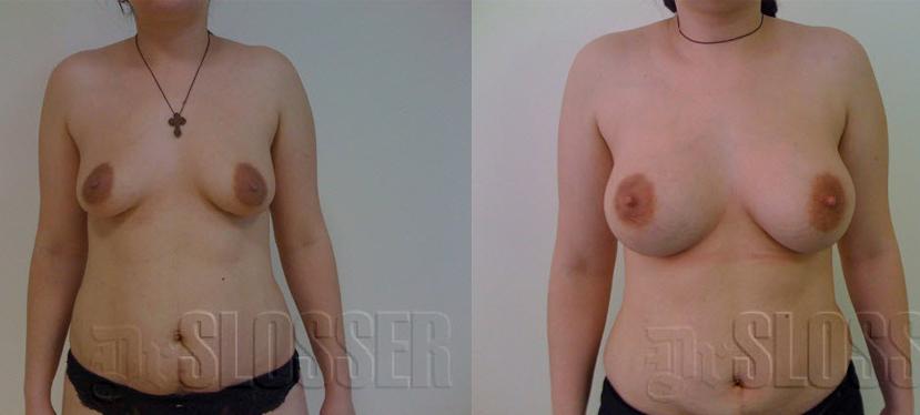Линдинет увеличение груди