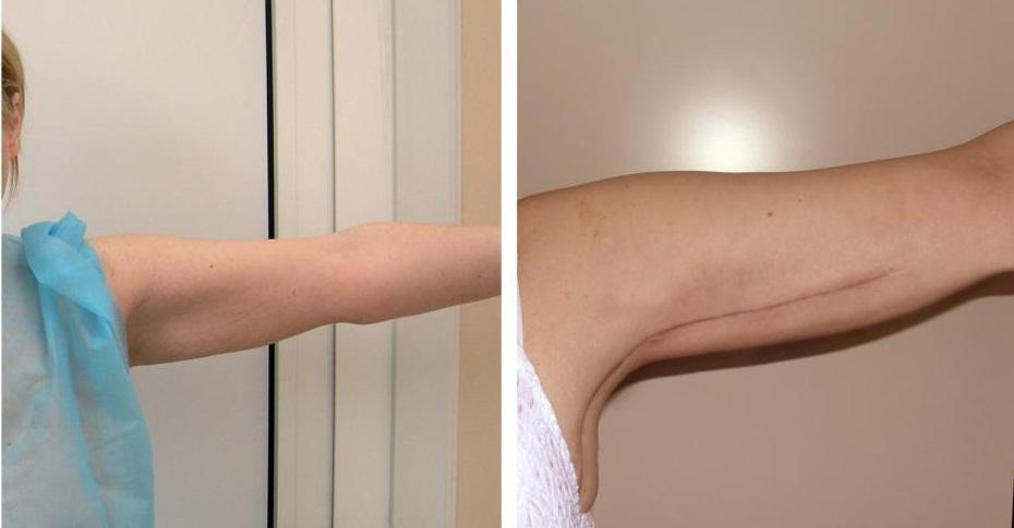 Операции для похудения рук